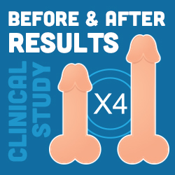 x4 labs before and after